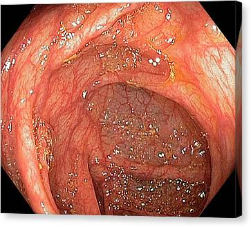 Endoscopy Canvas Print - Hepatic Flexure Of The Colon by Gastrolab
