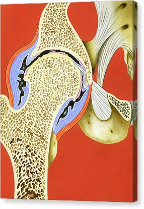 Hip Joint Inflammation Canvas Print