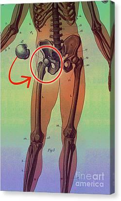 Hip Replacement Canvas Print by Dennis D Potokar