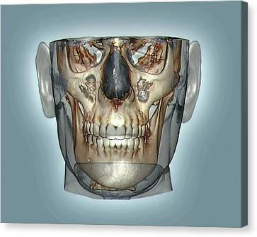 Human Head Canvas Print by Zephyr