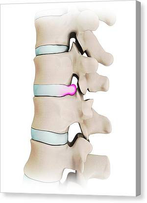 Disc Canvas Print - Human Spine With Slipped Disc by Mikkel Juul Jensen