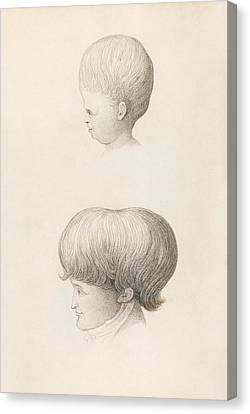 Normal Canvas Print - Hydrocephalus In Child And Adult by King's College London