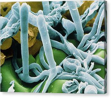 Hyphae And Asci Of Sphaerotheca Mildew Canvas Print by Power And Syred