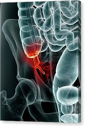 Appendix Canvas Print - Inflamed Appendix by Sciepro