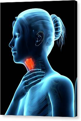 Inflammation Of The Larynx Canvas Print