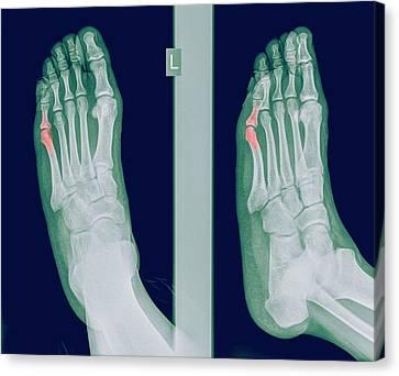 Radiograph Canvas Print - Intermediate Phalanx X-ray by Photostock-israel