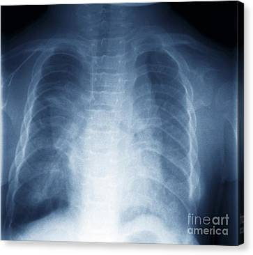 Jeune Syndrome, X-ray Canvas Print by Zephyr