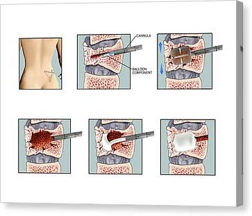 Kyphoplasty On Fractured Vertebra Canvas Print