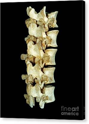 Lumbar Vertebrae Canvas Print by VideoSurgery
