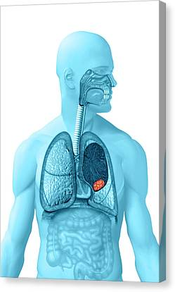 Lung Cancer Canvas Print by Carol & Mike Werner