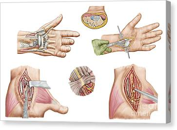 Medical Illustration Showing Carpal Canvas Print by Stocktrek Images