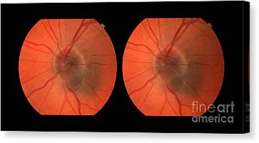 Melanoma Of The Optic Nerve Stereo Image Canvas Print by Paul Whitten