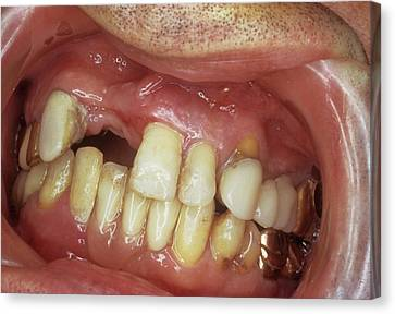 Missing Front Teeth Canvas Print by Dr. Portier/cnri