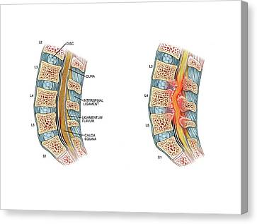Nerve Compression In Lumbar Stenosis Canvas Print by John T. Alesi
