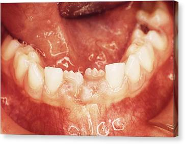 New Teeth Erupting Canvas Print