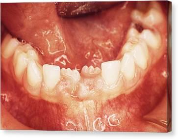 Milk Teeth Canvas Print - New Teeth Erupting by Dr. Portier - Cnri