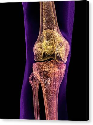 Scan Canvas Print - Normal Adult Knee by K H Fung