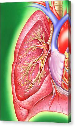 Obstructive Lung Disease Canvas Print by John Bavosi
