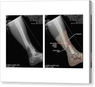 Open Fracture Of Tibia And Fibula Canvas Print