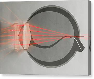 Corrected Canvas Print - Optics Of Corrected Near-sightedness by Science Photo Library