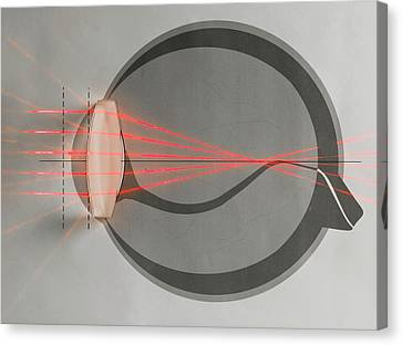 Optics Of Near-sightedness Canvas Print by Science Photo Library