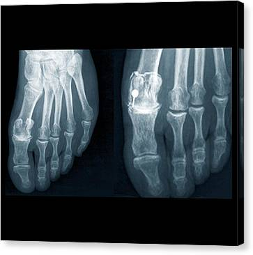 Osteoarthritis Of The Foot Canvas Print by Zephyr