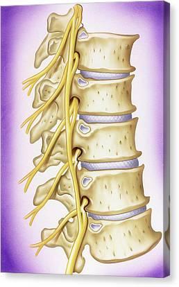 Osteoarthritis Of Vertebrae Canvas Print by John Bavosi