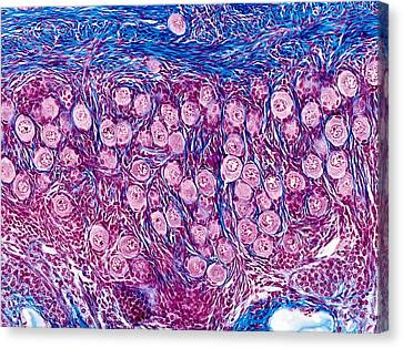 Ovarian Follicles, Light Micrograph Canvas Print by Science Photo Library