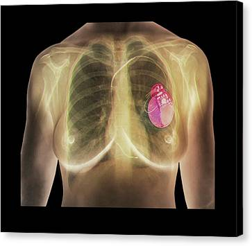 Heart Disease Canvas Print - Pacemaker by Zephyr