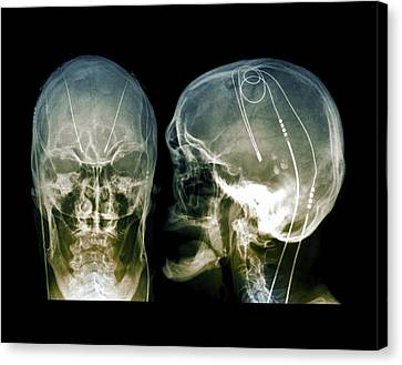 Parkinson's Brain Pacemaker Canvas Print by Zephyr