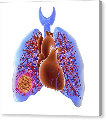 Circulatory System Canvas Print - Pulmonary Embolism by Alfred Pasieka