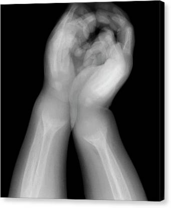 Rickets Canvas Print by Du Cane Medical Imaging Ltd