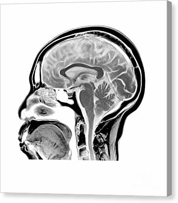 Sagittal Mri Of The Brain Canvas Print by Medical Body Scans