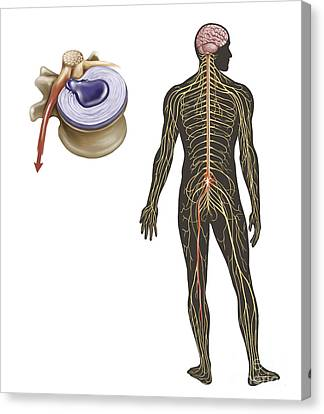 Sciatica Caused From Herniated Disc Canvas Print by TriFocal Communications