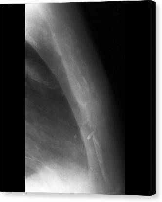 Cancer Canvas Print - Secondary Bone Cancer by Zephyr