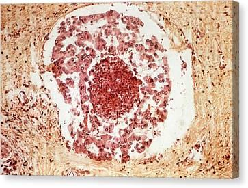Secondary Heart Cancer Canvas Print by Pr. R. Abelanet - Cnri