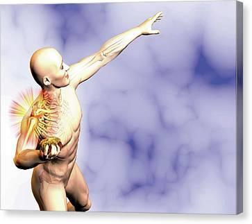 Shoulder Pain In Athlete Canvas Print