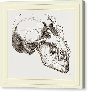 Skull Of Human Idiot Canvas Print by Litz Collection
