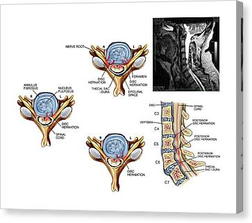 Slipped Discs In The Cervical Spine Canvas Print