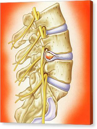 Slipped Intervertebral Disc Canvas Print by John Bavosi