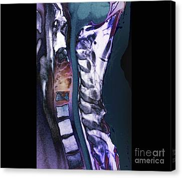 Ewing Canvas Print - Spinal Cancer, Mri Scan by Zephyr