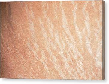 Stretch Marks Canvas Print by Dr P. Marazzi