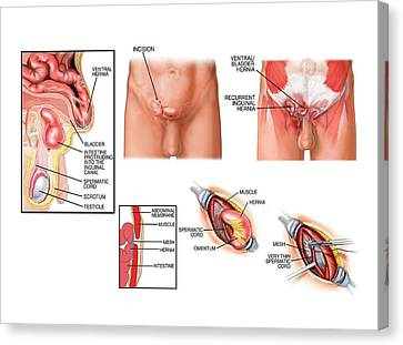 Hernia Canvas Print - Surgery On Inguinal Hernia by John T. Alesi