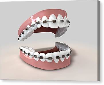 Teeth Fitted With Braces Canvas Print by Allan Swart