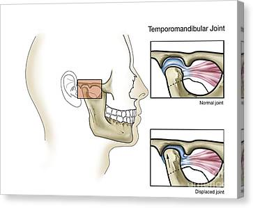 Temporomandibular Joint, Normal Canvas Print by TriFocal Communications