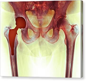 Total Hip Replacement Canvas Print by Dr P. Marazzi