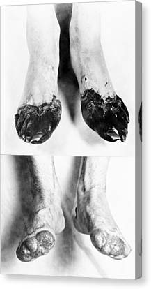 Trench Foot Canvas Print by Otis Historical Archives, National Museum Of Health And Medicine