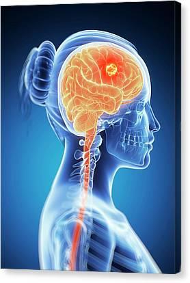 Tumour In The Brain Canvas Print by Sebastian Kaulitzki