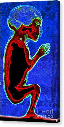 Unborn Fetus Canvas Print by Howard Koby