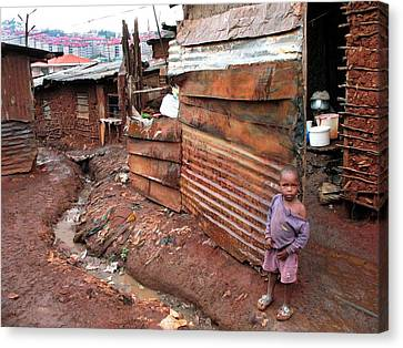 Urban Slum Canvas Print by Laura Conklin M.d., Medical Officer; Respiratory Diseases Branch/cdc